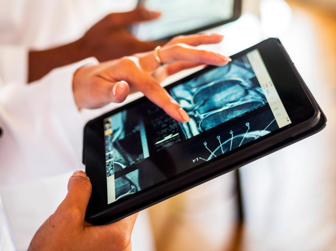 a doctor looking at a CT scan or MRI on an ipad.