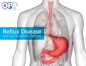 Reflux Disease and your treatment options